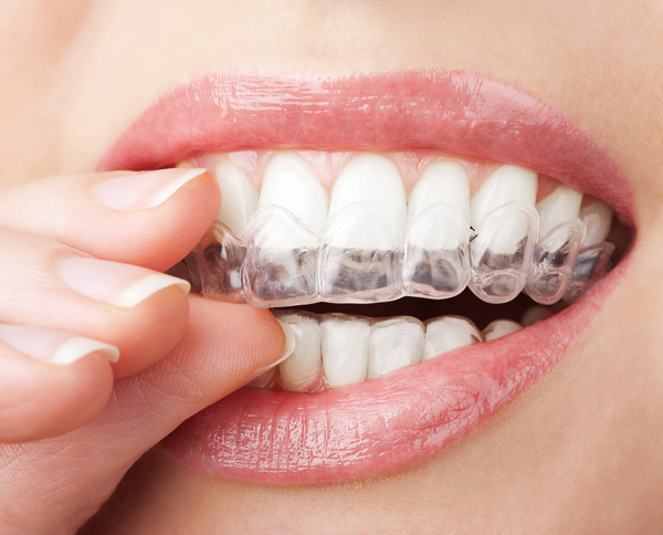 Affordable Invisalign In West Hempstead NY